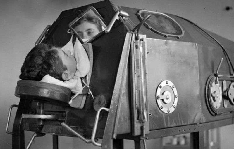 """Специальный прибор """"железные легкие"""": человек ложится внутрь капсулы, и она как бы дышит за него, сам он при этом абсолютно обездвижен"""