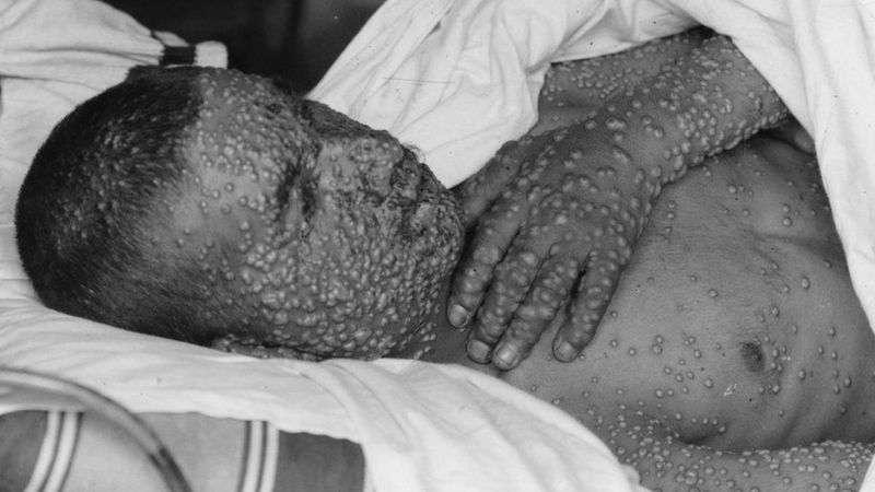 От оспы люди слепли, умирали, на теле оставались шрамы