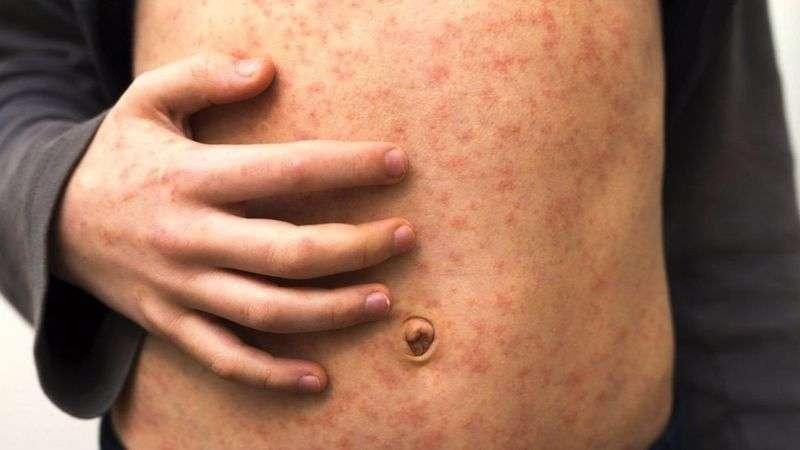 Отказ от прививки - основная причина роста заболеваемости корью