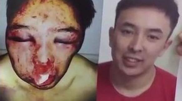 Распространённый в Интернете отцом Алиби Жумагулова фотоснимок с избиением сына
