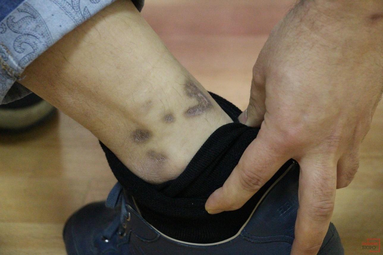 Шрамы на ногах Хамро Суванова