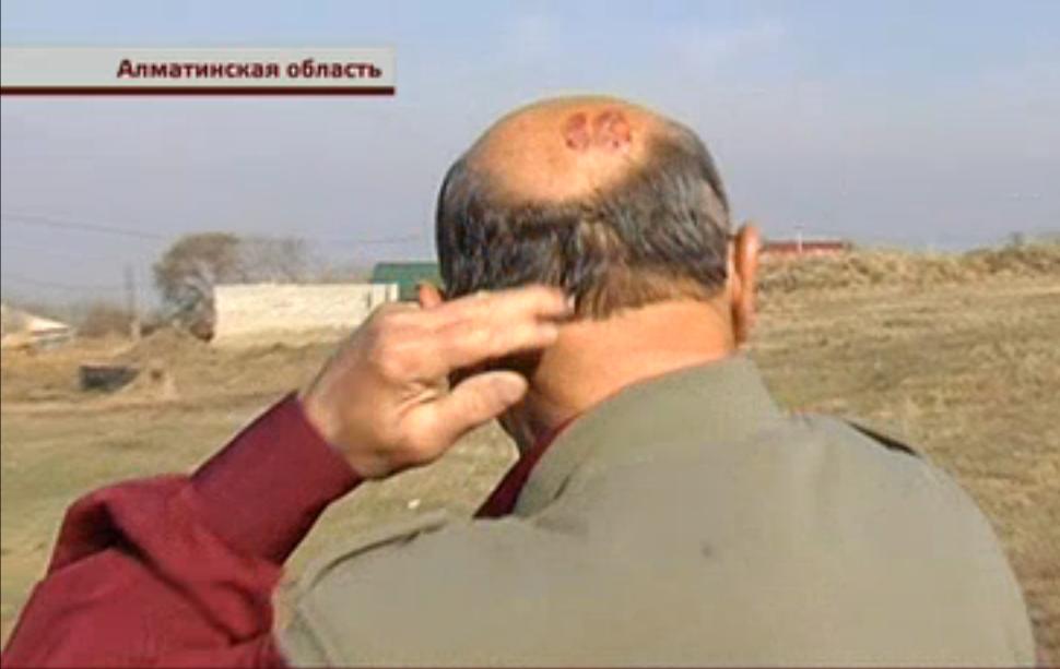 Пенсионер продемонстрировал гематому на голове