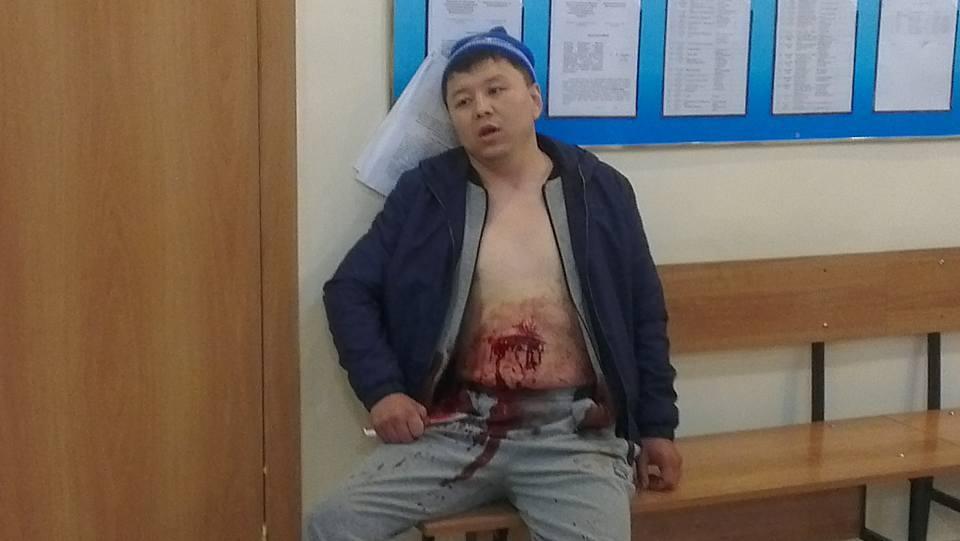 Жанболат Оспанов нанес себе ножевые ранения