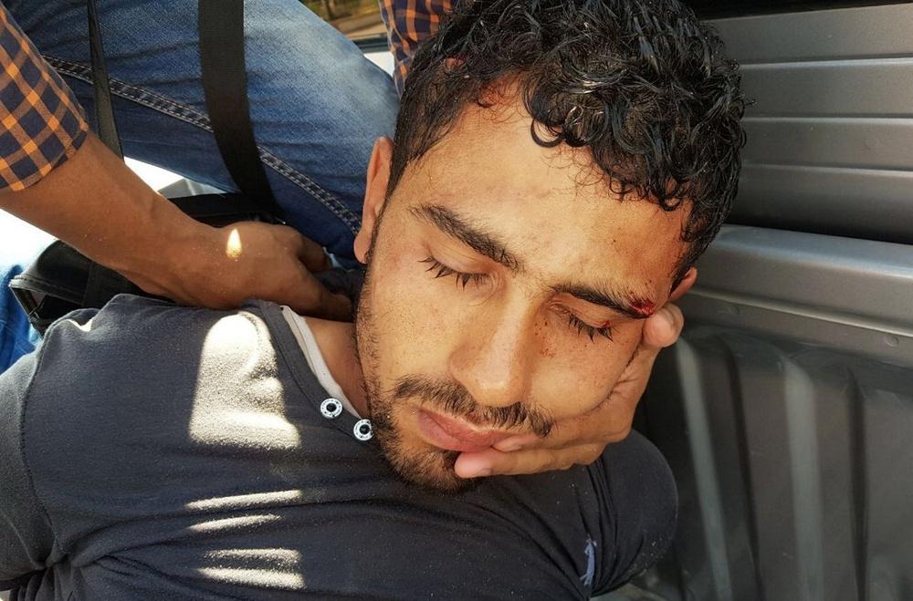 Нападавшего задержали сотрудники безопасности отелей