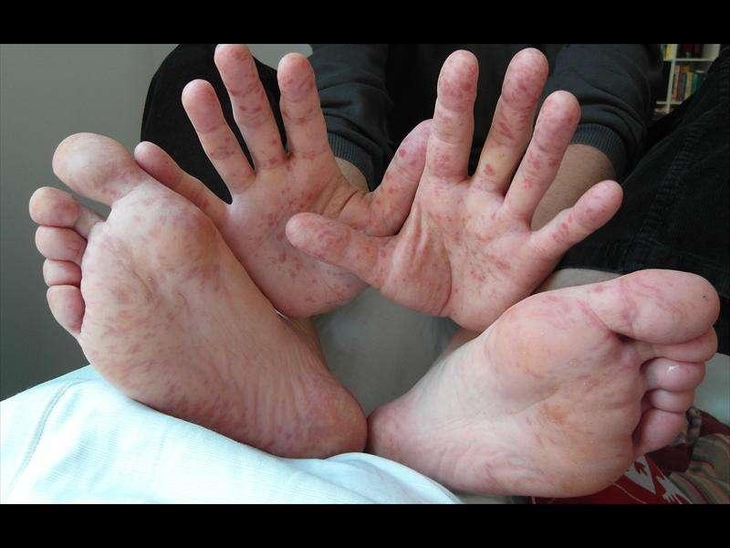 Вирус Коксаки проявляется тошнотой, высокой температурой, сыпью на ладонях, ступнях и слизистых
