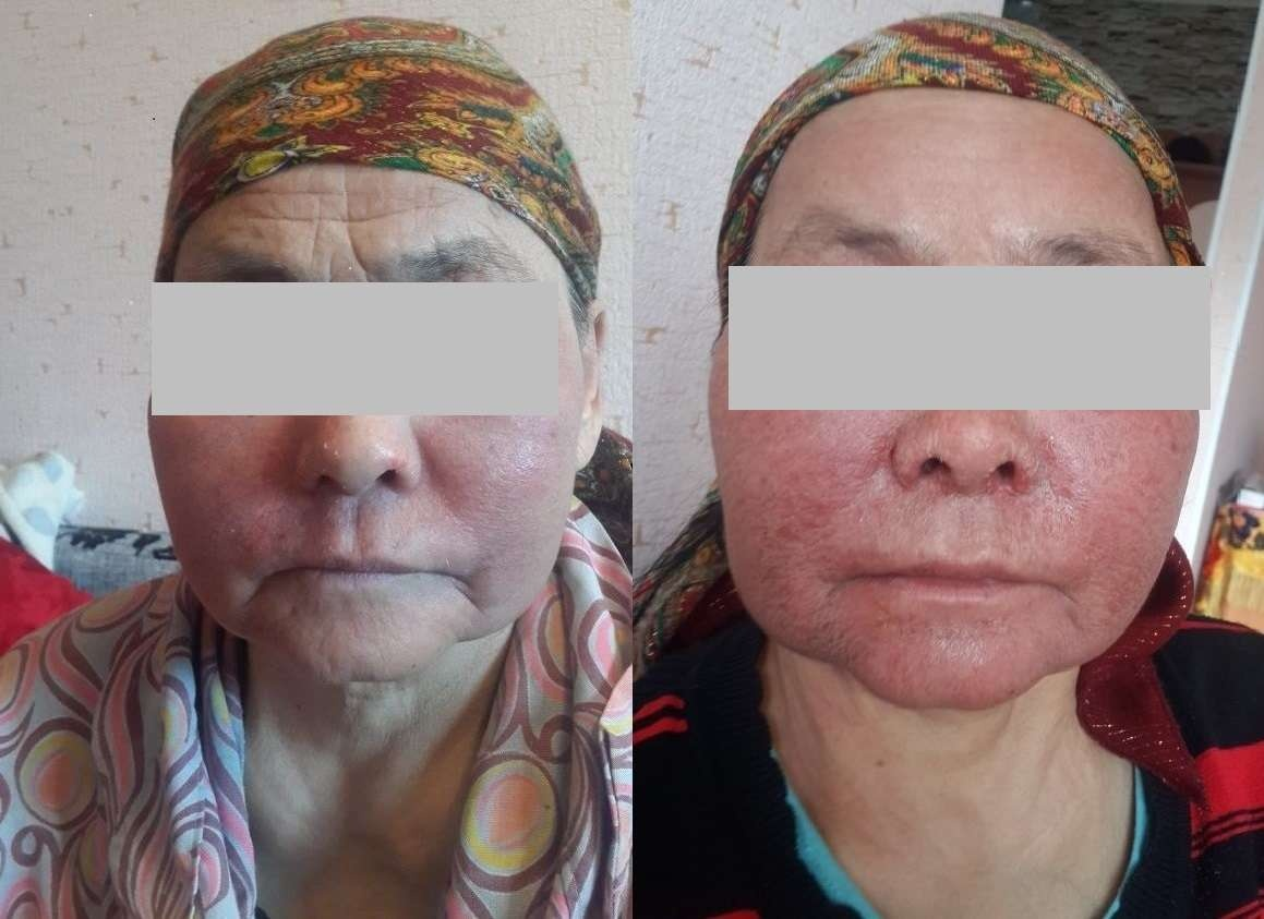 Темірғалиева Розагүл, жасы 68-де, биологиялық белсенді қоспадан кейін ауырған