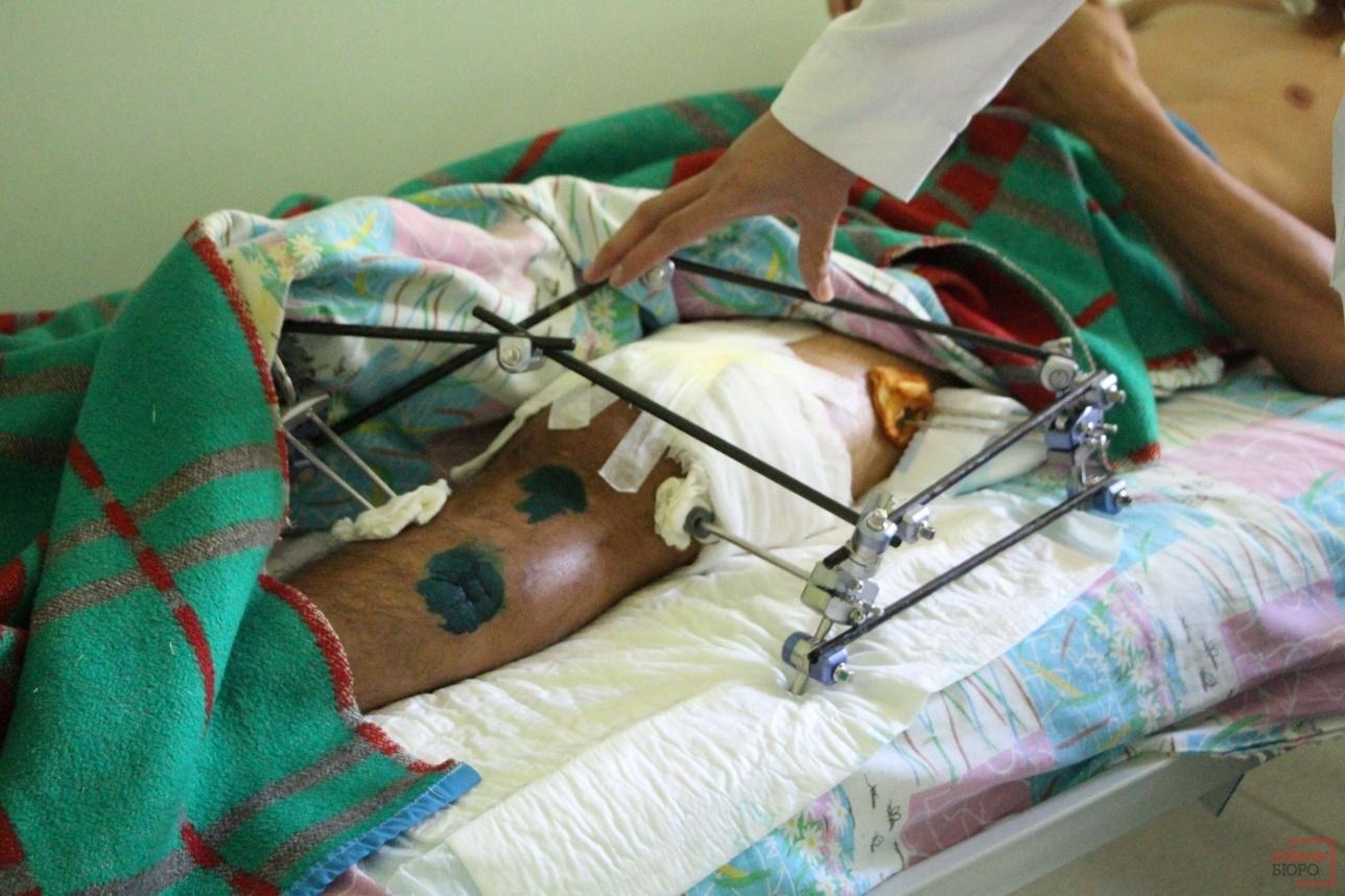Хирурги сопоставили перелом и наложили аппарат внешней фиксации. Пациенту предстоит ещё несколько операций по восстановлению бедренной кости.