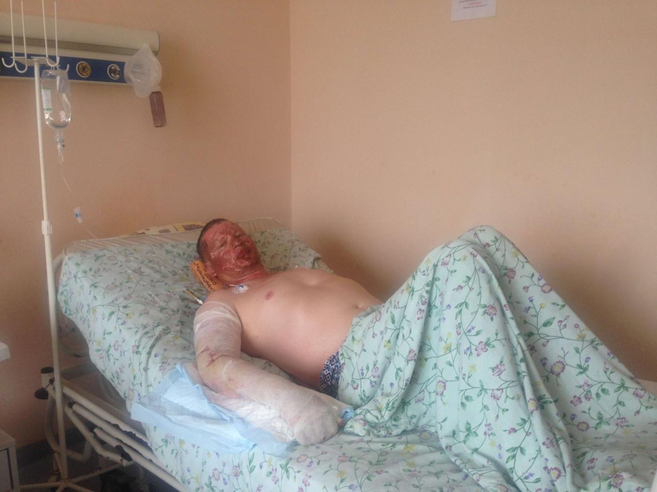 Павел Черепанов совершил самоподжог во время сноса его гаража